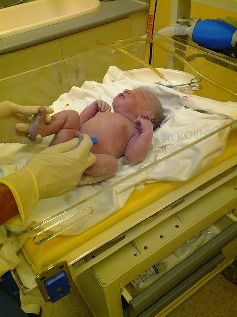 Iltmangel under fødslen