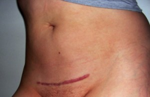 hængende bryster smerter ved spiral